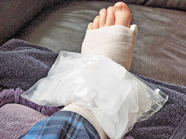 ■用繃帶保護及固定傷患,配合冰敷減少發炎反應。